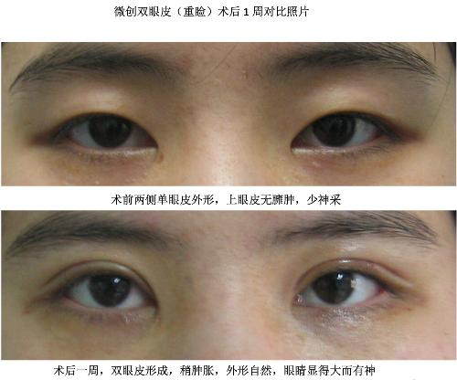 北京多点定位双眼皮