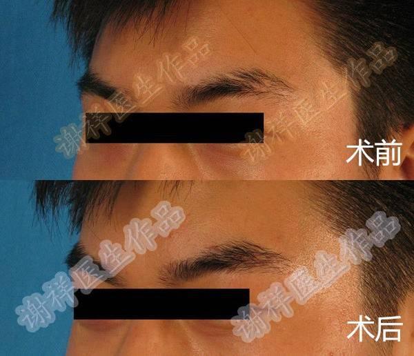北京毛发移植植眉
