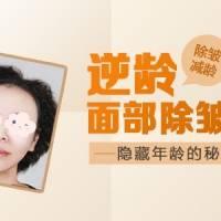 逆龄面部除皱术 把你的年龄隐藏起来