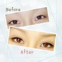 微创双眼皮 改善眼型缺陷 让您拥有灵动美眸