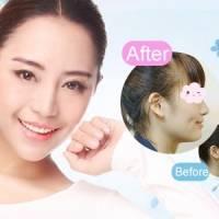 改善塌鼻丰唇等 玻尿酸塑形补水全脸任选部位