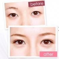 成都全切双眼皮 定制美眼套餐(三选一):全切双眼皮/韩式多点双眼皮/韩式无痕双眼皮