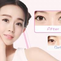 韩式三点重睑术给你魅力大眼 为你开启睛彩人生
