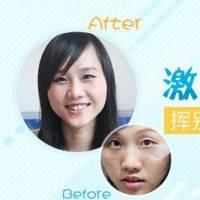 广州激光面部祛斑  祛斑+美白+嫩肤  让你的面孔焕然一新