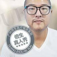 广州FUE胡须种植 低损伤高成活 激发你的男人味