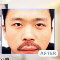 广州FUE上唇胡须种植 效果自然 植出男人味