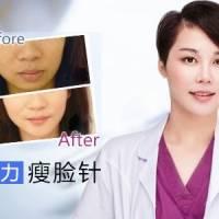 宁波颜术开店特惠 巨便宜瘦脸针1099元 30天内消费有效