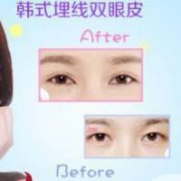 同济美容医院 专业医生操作 瞬间放大双眼 效果自然长久