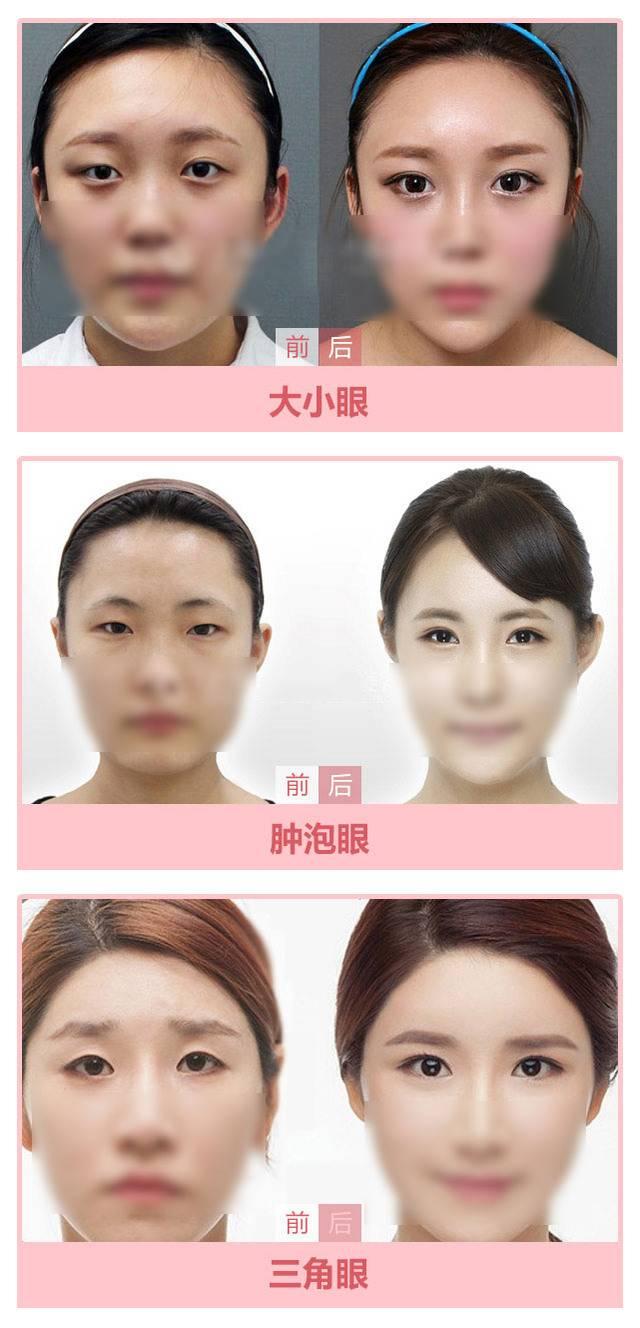 武汉韩式微创三点双眼皮 创伤更小恢复更快 个性自然 美上加美 悦美整