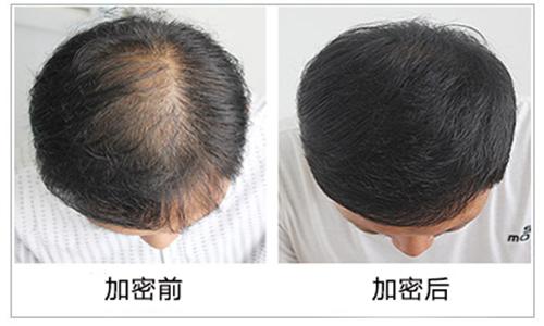 深圳头发加密1000单位 植一次 美一生 植发加密 改变看得见