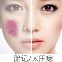 激光除去顽固胎记/太田痣 皮肤光洁更健康