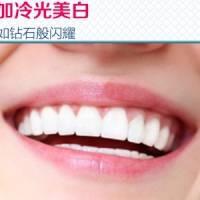 联合丽格 冷光美白+洗牙 让牙齿高阶亮白 幸福就要笑出来