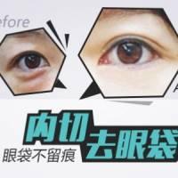 【祛眼袋-皮膏+肌肉型】 去除眼袋 微创切口 愈后隐痕