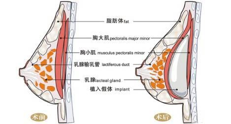 假体隆胸第七天触碰乳房痛