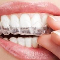 成都牙齿矫正 进口隐适美 隐形牙套  让你悄然变美