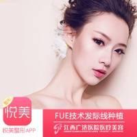 FUE种植发际线 改善脸型 让你更秀气