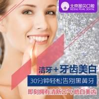 北京圣贝牙齿炫彩美白+洗牙套餐 舒适无痛 即刻拥有靓白美齿
