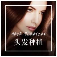 杭州植发 头发种植 大面积5折种植推荐 仅限悦美