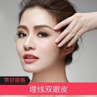 北京埋线双眼皮 可逆无痕 限时特惠
