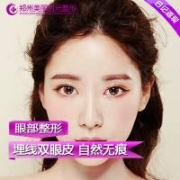 郑州埋线双眼皮 自然隐痕 安心变美