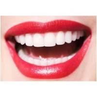 进口烤瓷牙综合解决牙齿问题 打造自然美白牙齿