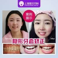 牙齿矫正 时代天使隐形矫正
