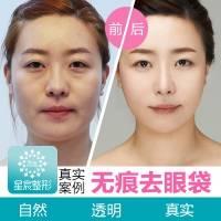 韩式外切法去眼袋 告别苍老眼袋焕发年轻光彩