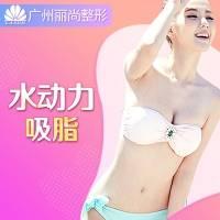 广州全身水动力吸脂  吸脂专家打造你的曲线 限体验一次