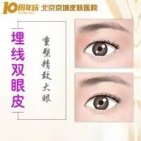 北京埋线双眼皮 院庆十周年 重塑精致大眼 一生做女神