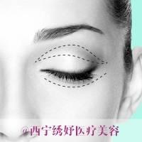西宁韩式微创双眼皮