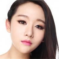 北京切开双眼皮 贝拉芭比眼综合美目术 切开双眼皮+开内外眼角+下眼睑下至