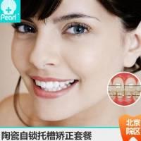 北京陶瓷自锁矫正套餐  牙齿矫正半隐形陶瓷矫正 时间短 想要美齿 永远不会太迟