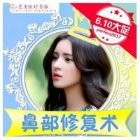广州隆鼻失败修复 3c隆鼻术 写日记最高返现9960元