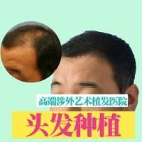 毛发种植/头发种植  头顶加密 告别脱发 找回自信 写日记返3000