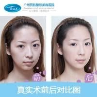 广州内切去眼袋 韩式祛眼袋+眶隔收紧 隐形无痕 快速逆转眼部年龄!
