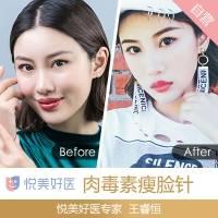 北京衡力瘦脸针