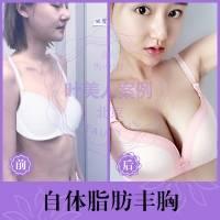 北京自体脂肪隆胸 软黄金微雕美胸 塑造动感胸形