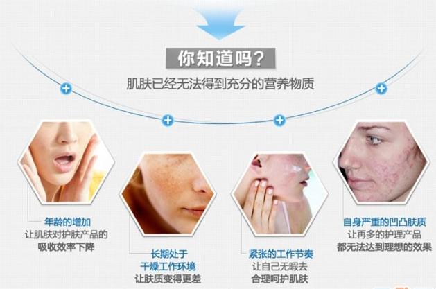 北京贝拉活肤小气泡 5次 深层清洁肌肤 一次还你净透亮