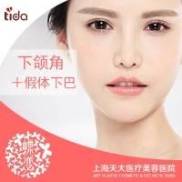 上海磨下颌角+威宁假体下巴 紧致下脸型打造 日记专享价 每月仅限前10名顾客