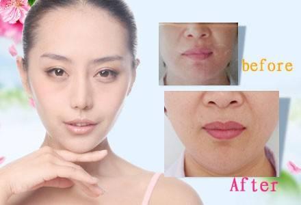 海薇玻尿酸微创隆下巴