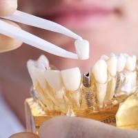 北京种植牙术前常规检查套餐