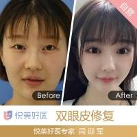 双眼皮修复 纯韩技术专家闫迎军 超高满意度 6折优惠只限2名