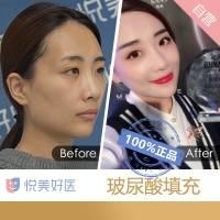 悦美好医玻尿酸填充 立体塑型 打造精致可爱又减龄的少女脸 丰唇 卧蚕