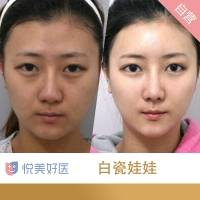 皮肤专家徐莹莹 美白淡斑给你无瑕肌 让肌肤更通透 悦美自营进口高品质仪器