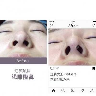北京埋线隆鼻