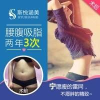 水动力吸脂瘦腰腹 北京腰腹吸脂 360度水动力吸脂塑腰型 两年包3次 吸出A4小蛮腰雕刻完美曲线