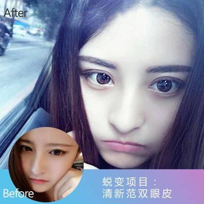 韩式肿眼泡祛除术