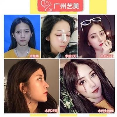 李氏3C翘鼻术