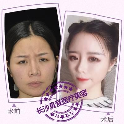 面部吸脂打造V脸