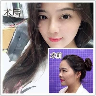 3D韩式小翘鼻